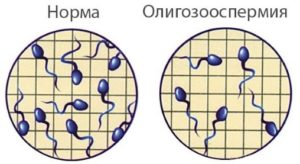 Причины олигозооспермии