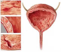 цистит у мужчин симптомы и лечение лекарства