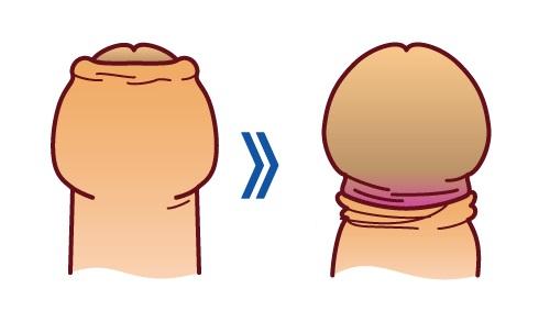 рубцовым фимозом