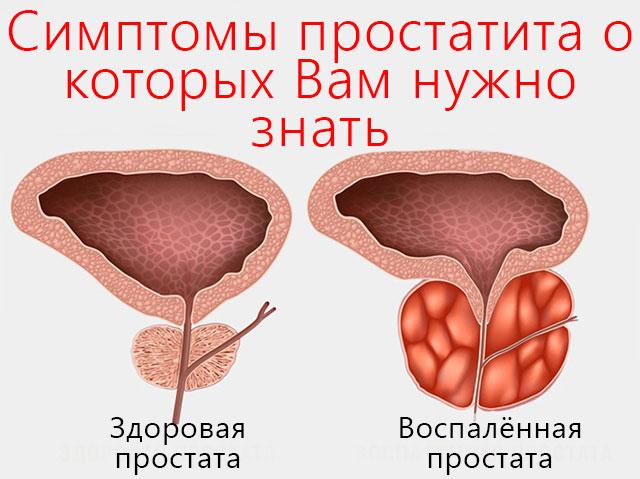 симптомы простатита у мужчин и его лечение